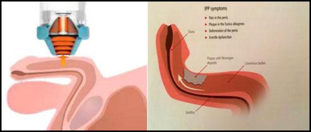Peyronie clinica rocamar